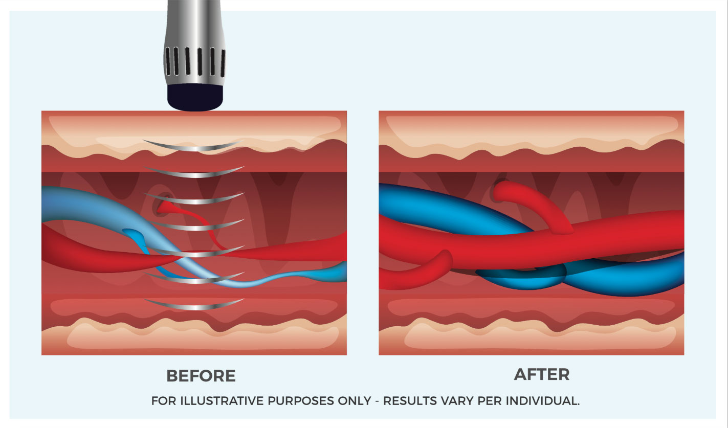 botox and dysport injections