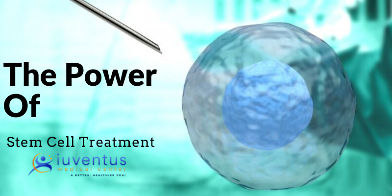 The Power Of Stem Cell Treatment-iuventus med center