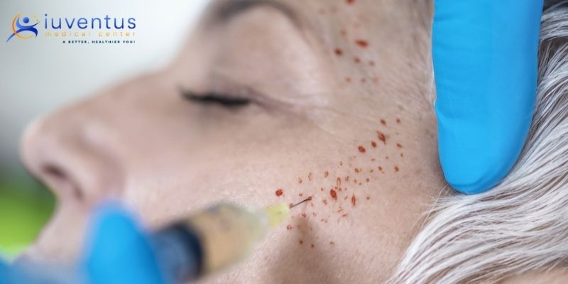 PRP Treatment For Skin Rejuvenation